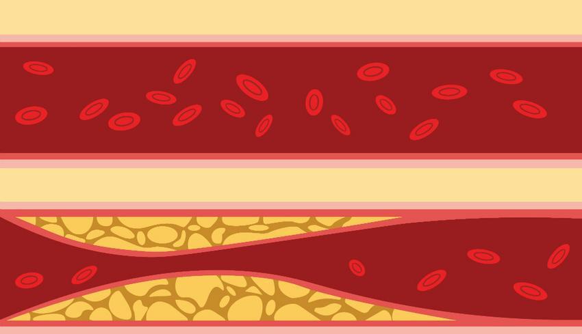 a magas vérnyomás fokot okoz Megadják-e a fogyatékosságot 2 fokozatú magas vérnyomás esetén