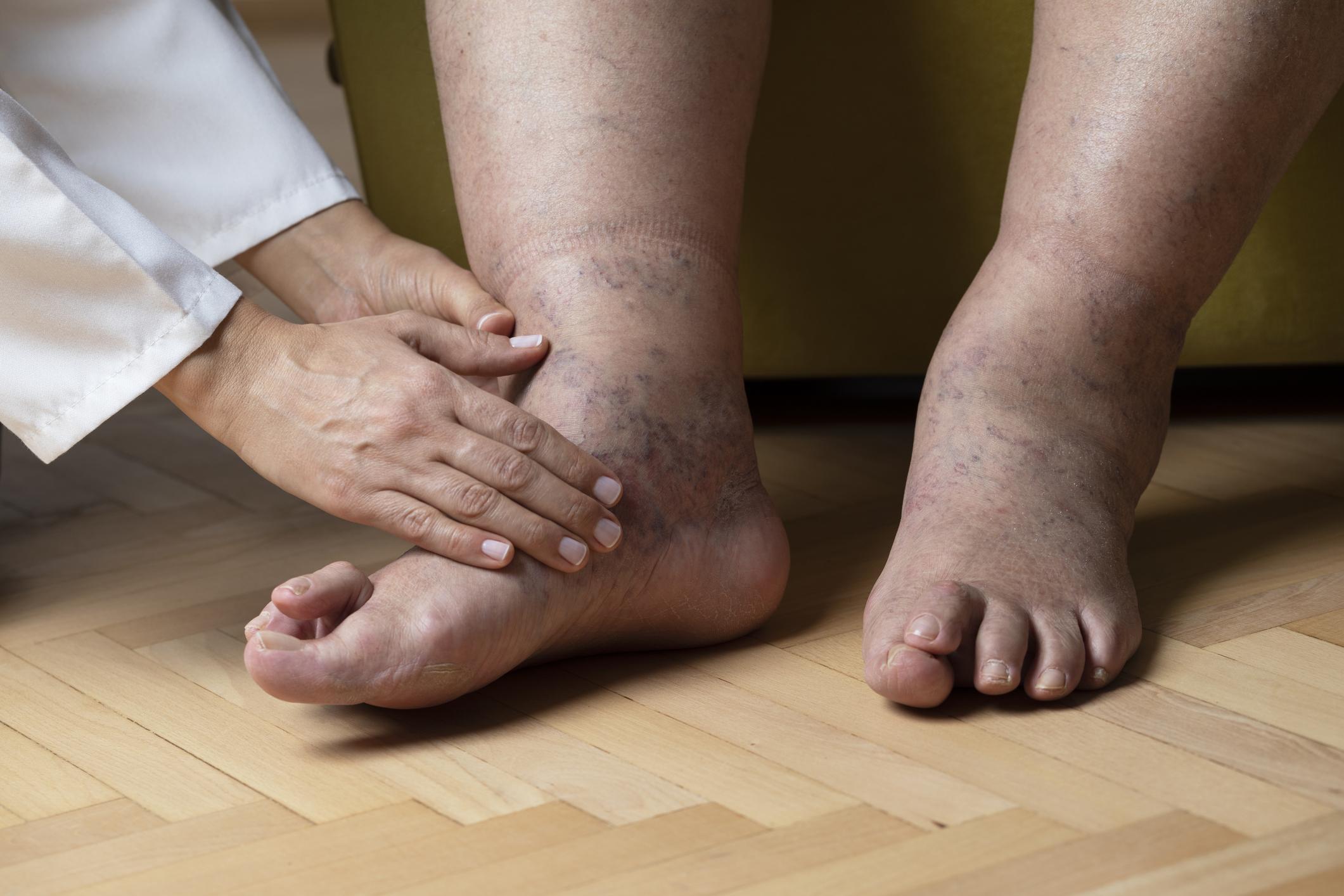Szimpatika – Duzzadt lábak: ez állhat a háttérben!