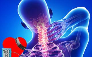 a nyaki osteochondrosis és a magas vérnyomás kezelése