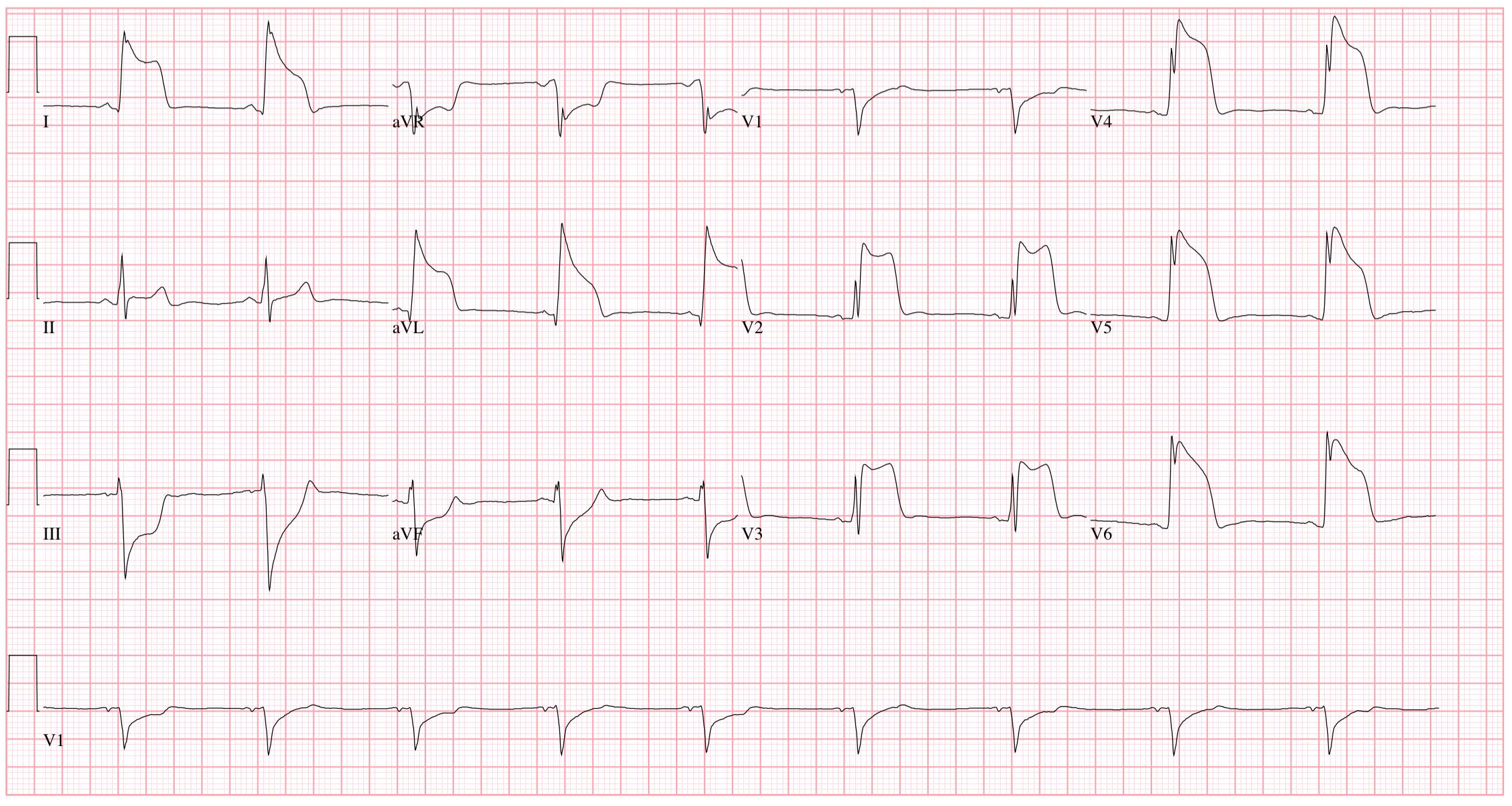 EKG a magas vérnyomás következtetésére)