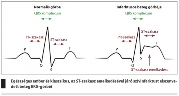 első fokú és első stádiumú magas vérnyomás