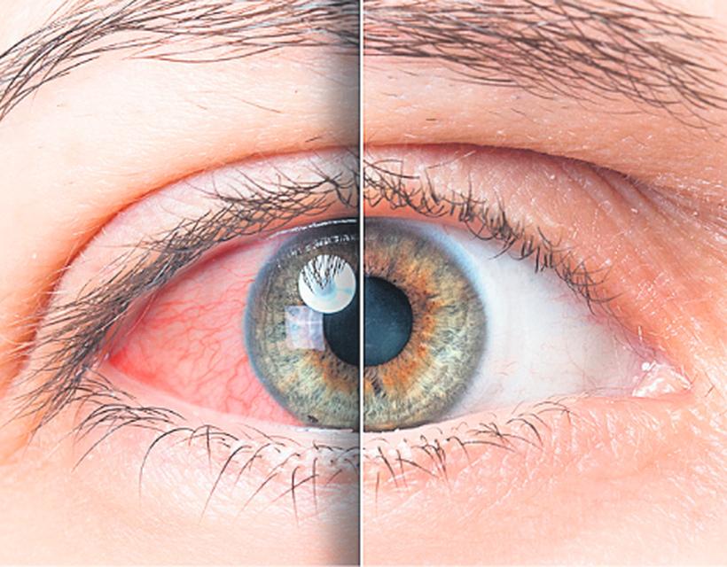 magas vérnyomás nyomja a szemet