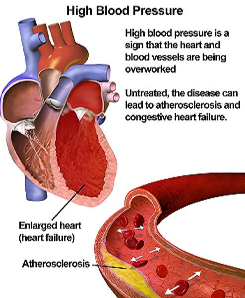 magas vérnyomás visszavonulhat hogyan kezelhető a magas vérnyomás népi gyógymódokkal