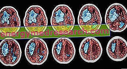 vérzéses stroke és magas vérnyomás