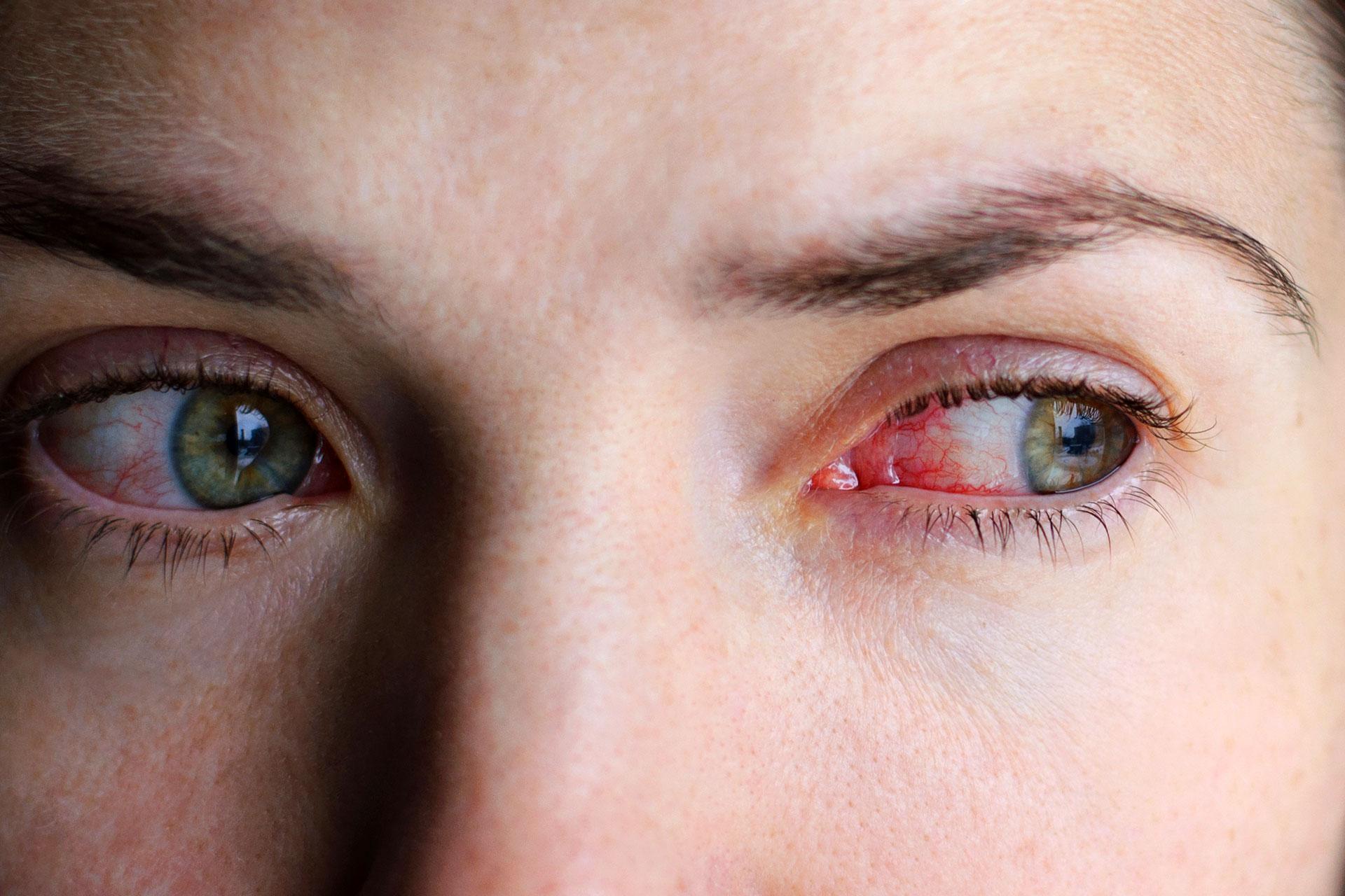 Duzzadt, vörös, sötét karikás, égő szem