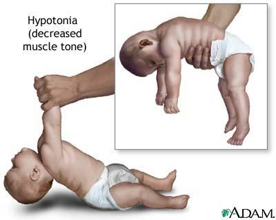 Ha nem fejlődik megfelelően a baba mozgása: mi lehet az ok?