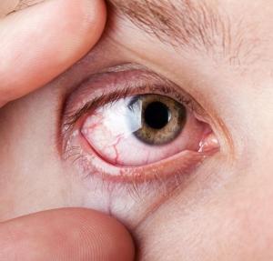 magas vérnyomás fájó szemek)