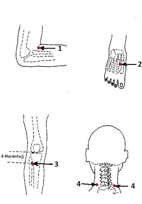 akupunktúrás pont magas vérnyomás)