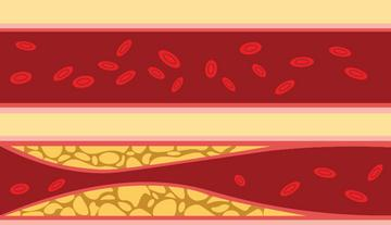magas vérnyomás kezelési protokoll