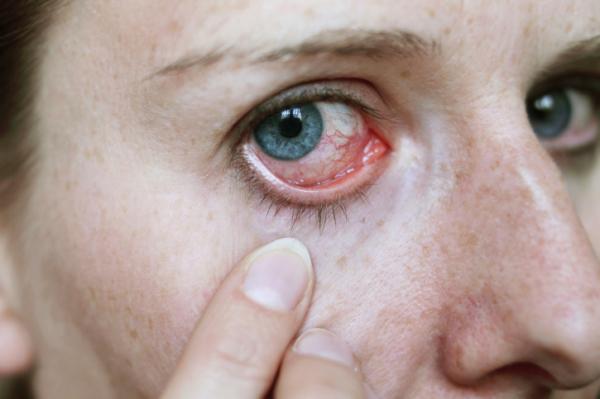 magas vérnyomás hatása a szemre hogyan lehet a magas vérnyomást népi módszerekkel kezelni
