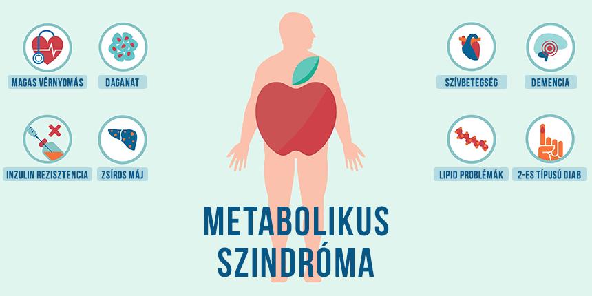 Metabolikus szindróma tünetei és kezelése