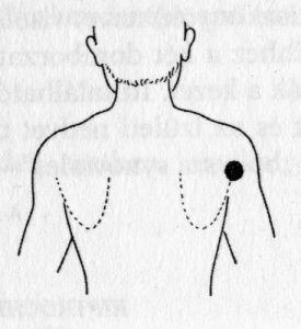 magas vérnyomás és a hagyományos orvoslás kezelése