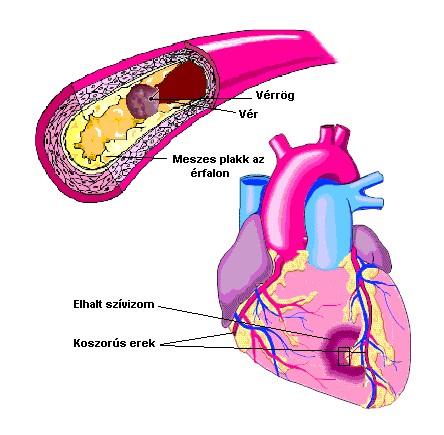 magas vérnyomás és a vér koleszterinszintje)