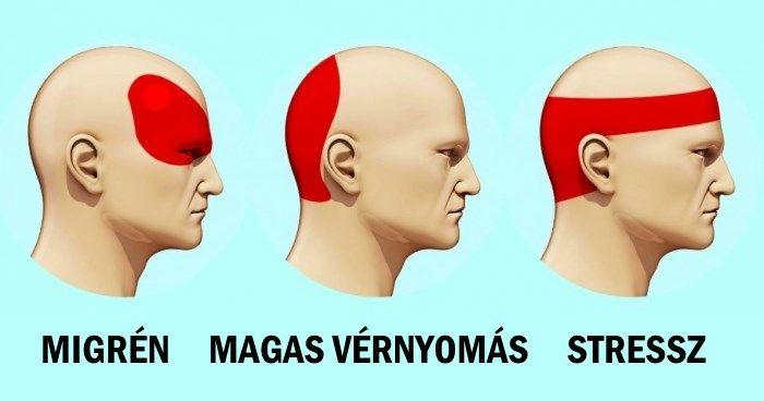 Fejfájás, migrén kezelése
