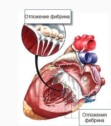 Neurocirculatory dystonia: tünetek és kezelés - Aritmia November