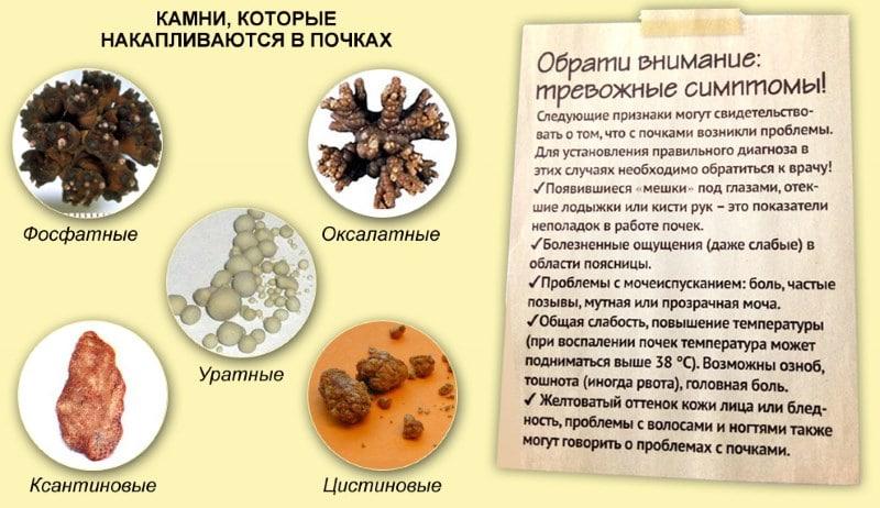 Az erek tisztítása népi gyógymódokkal - Thrombophlebitis