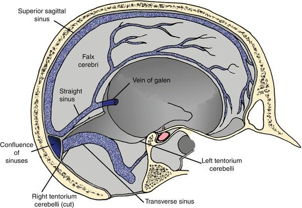 tentorium hipertónia