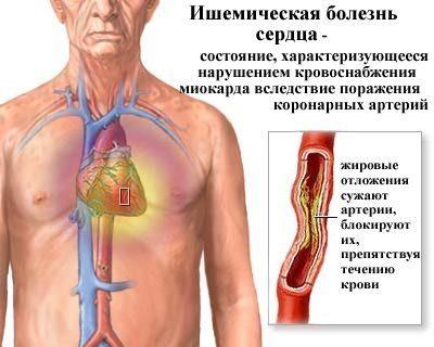 Neurocirkulációs dystonia és annak jellemzői - Vasculitis