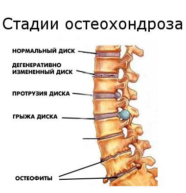osteochondrosis hipertónia gyakorlása magas vérnyomás kezelése mágnesekkel